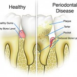 preventive and Conservative Dentistry- Gum Disease Therapy