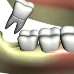 preventive and Conservative Dentistry- Tooth Extraction
