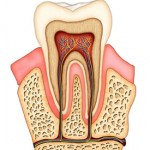 preventive and Conservative Dentistry- Root Canal Therapy