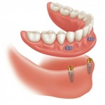 preventive and Conservative Dentistry- Full/Partial Dentures